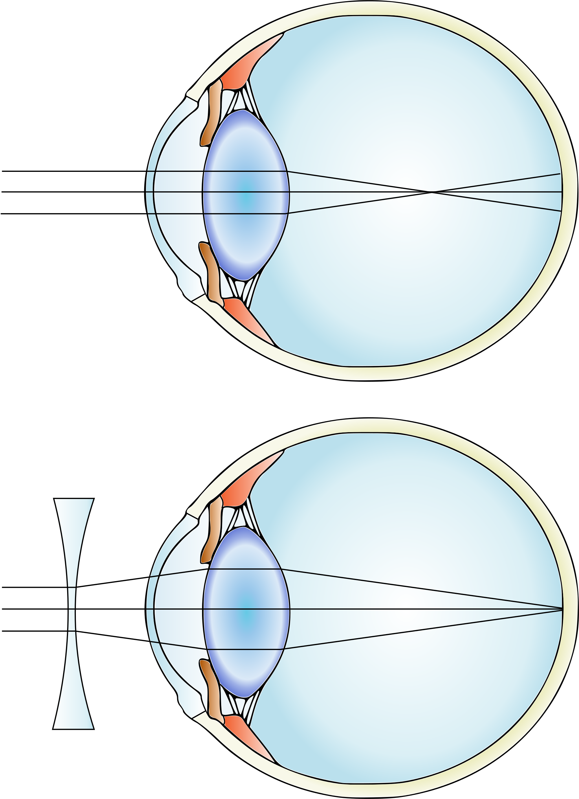 Myopia_and_lens_correction.svg