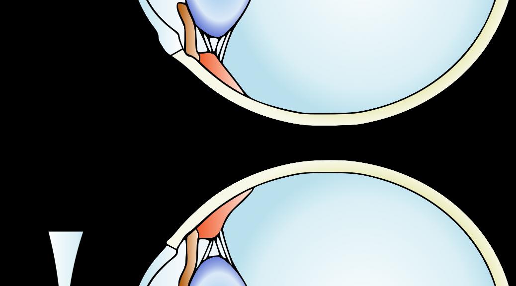 Miopía y lente correctora